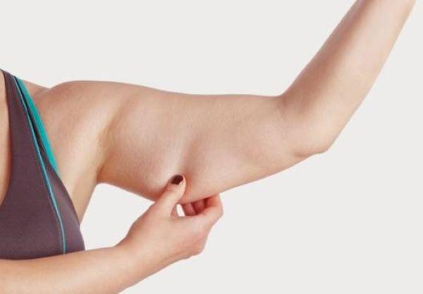Bắp tay to do thừa cân